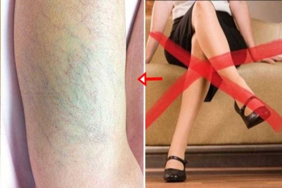 Ngồi vắt chéo chân gây ra việc chèn ép mạch máu ở vùng chân